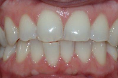 Ortodonta poznań 42