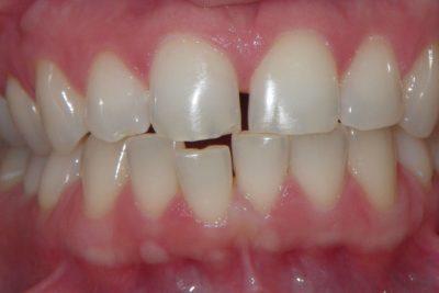 Ortodonta Poznań 2