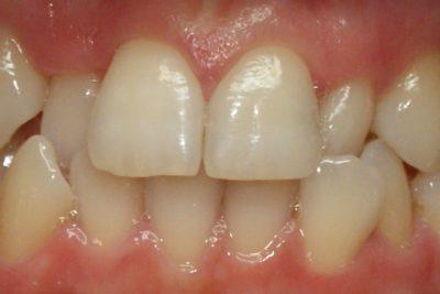 Ortodoncja poznań 3