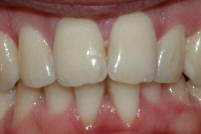 Zęby 1