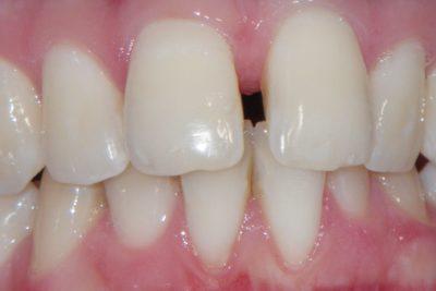 Aparat ortodontyczny 45